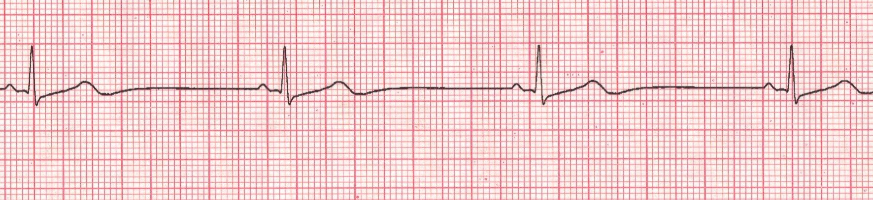 12 Lead EKG Interpreta...