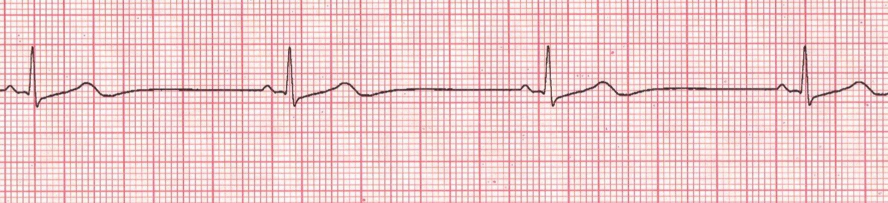 Watch How to Identify Heart Arrhythmias video